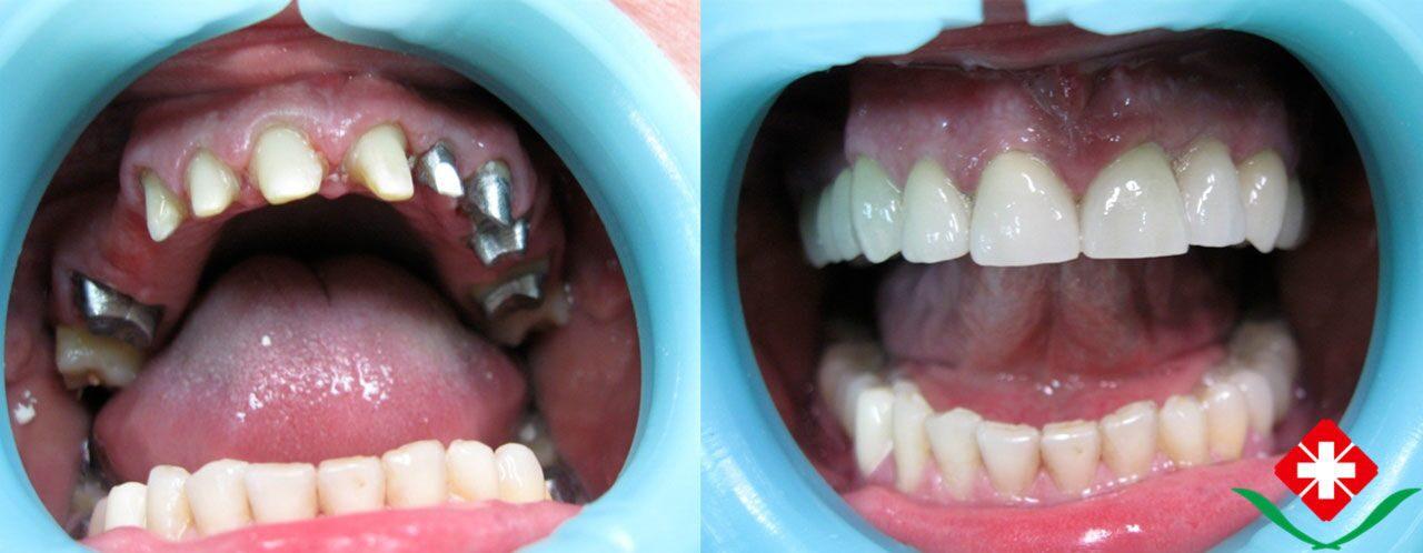Как выглядит мост на передние зубы