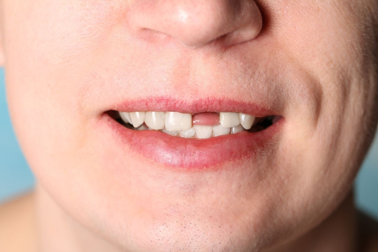 tooth_loss