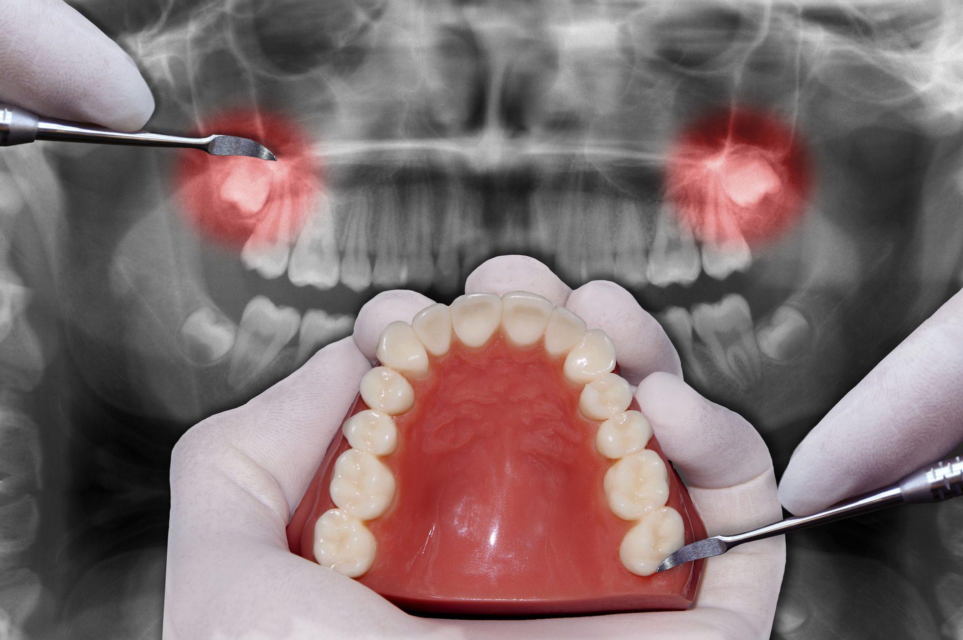 Зуб дает осложнение на
