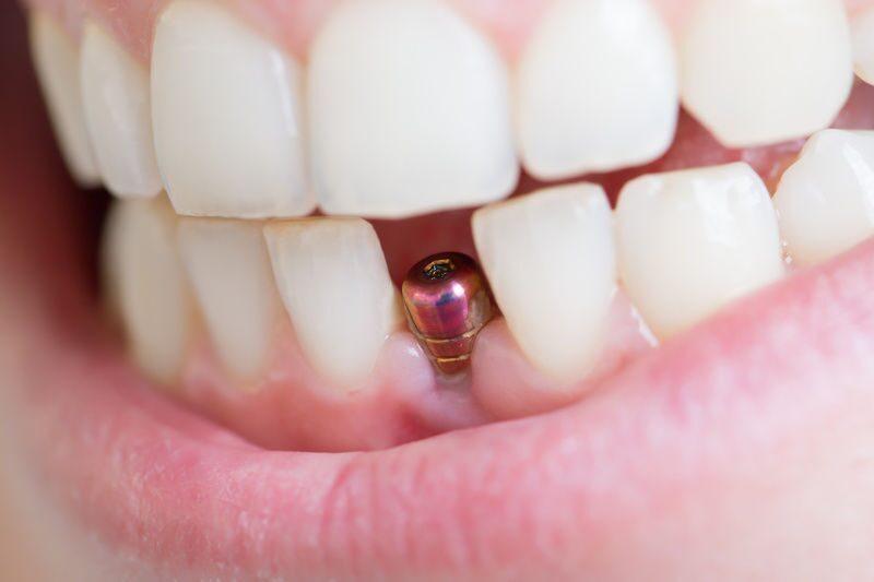 Кому можно сделать имплант зубов