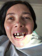 протезирование зубов в Китае