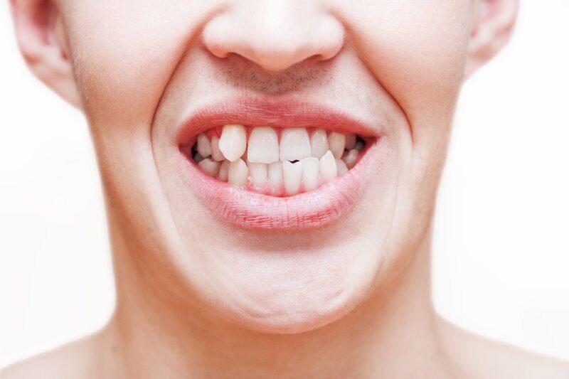 Смещение зубов: почему это происходит, и как с этим бороться?